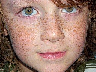 La tache de pigment sur les sourcils